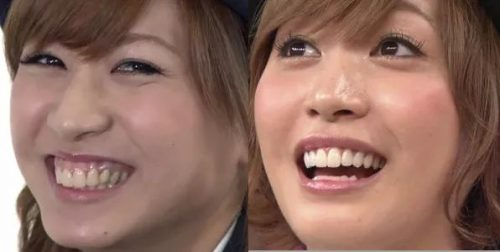 大島麻衣の歯茎